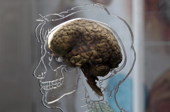 The Real Brain Exhibit @Bristol Science Centre